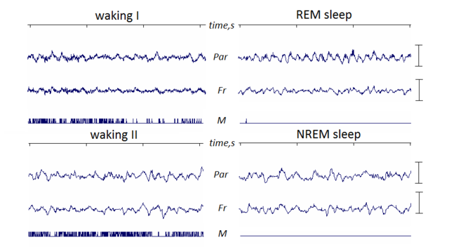 (EEG of REM sleep and NREM sleep - Image Courtesy of commons.wikimedia.org)