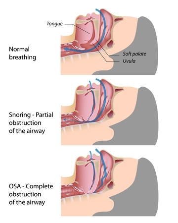 ( Obstructive Sleep Apnea OSAS and Upper Airways in Respiratory Tract - Image Courtesy of www.docsopinion.com )