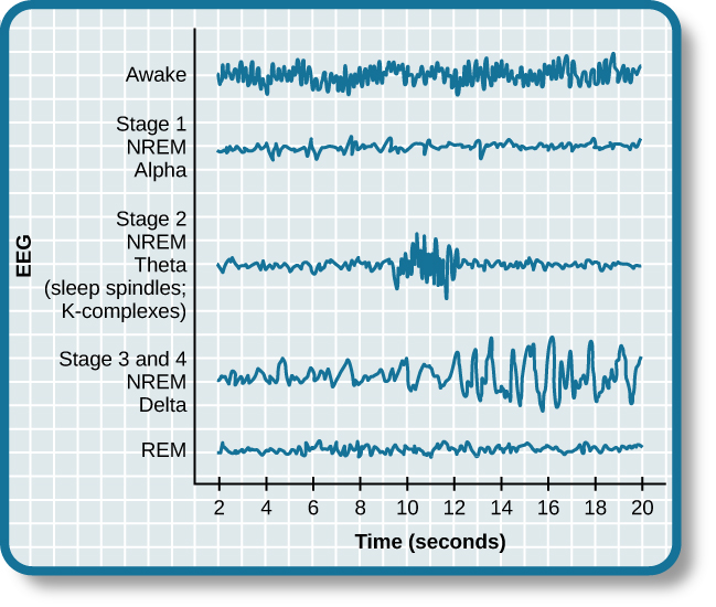 ( EEG of NREM sleep and REM sleep - Image Courtesy of cnx.org )