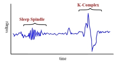 ( Sleep Spindles and K-Complexes Image Courtesy of en.wikipedia.org )