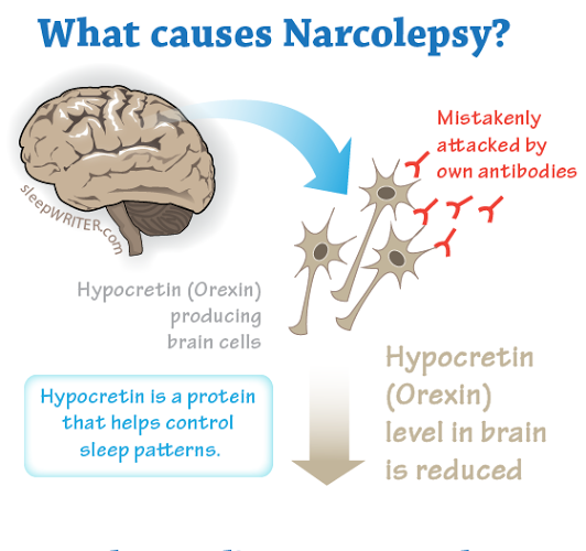 ( Narcolepsy Cause - Hypocretin or Orexin - Image Courtesy of healthresearchfunding.org )