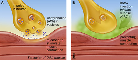 ( Acetylcholine and Muscle Paralysis Mechanism - Image Courtesy of www.gainesonbrains.com )