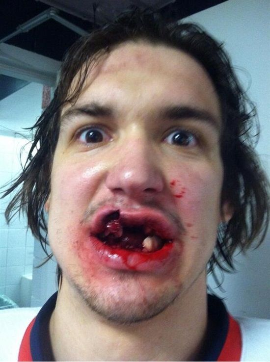 ( Do you think he was wearing a Mouth Guard??! - Image Courtesy of www.pinterest.com )
